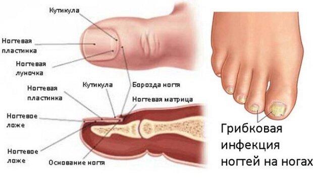 Грибок ногтей ног