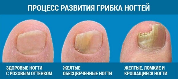 Грибок ног ногтей