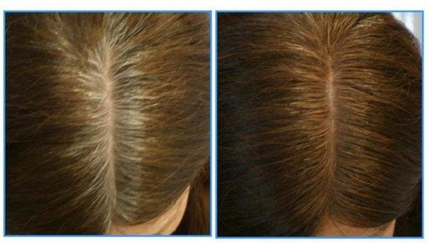 седые волосы до и после