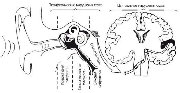 Заболевания и их расположение