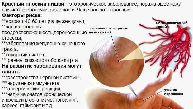 Причины и симптомы красного лишая