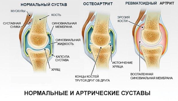 Артерические суставы