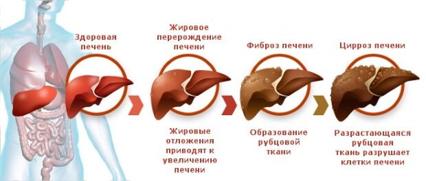 Основные заболевания печени