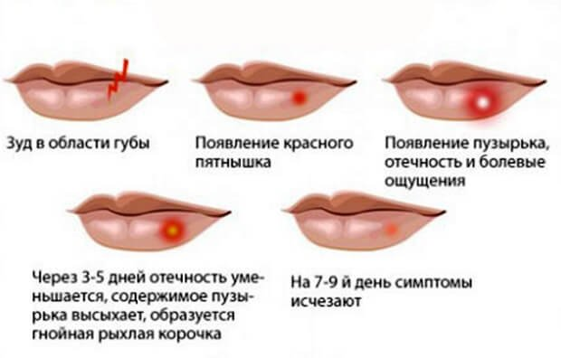 Поражение губ вирусом герпеса