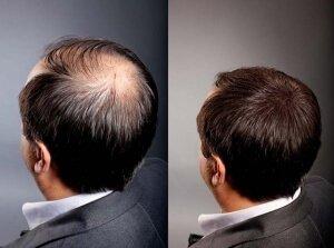 Когда возникают первые возрастные проблемы с волосами