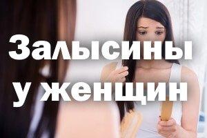 Залысины у женщин
