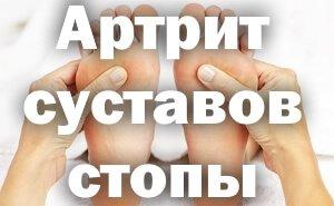 Поражение стоп артритом