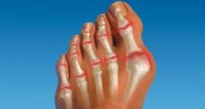 Поражение артритом большого пальца стопы
