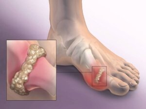 Артрозо-артрит стопы