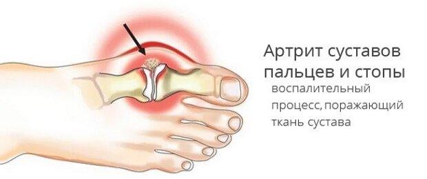 Артрит суставов пальцев