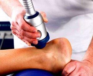 Лечение артроза голеностопа
