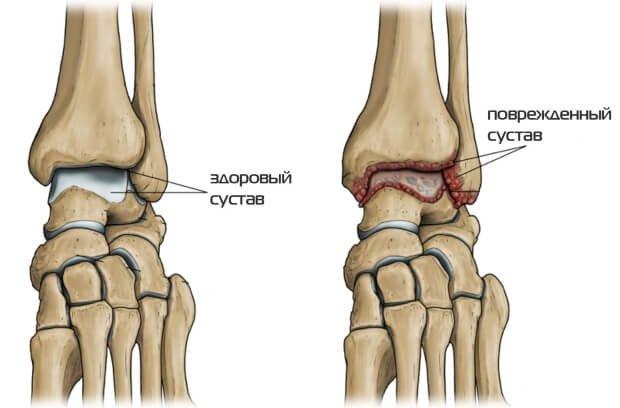 Здоровый и поврежденный сустав голеностопа