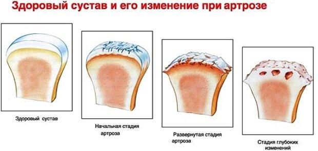 Изменения сустава при артрозе