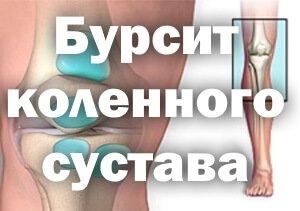 Воспаление синовиальной сумки