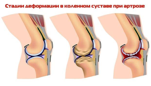 Стадии деформации в коленном суставе при артрозе