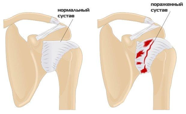 Сравнение нормального и пораженного сустава
