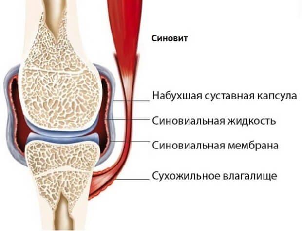 народные средства лечения при заболевании коленного сустава