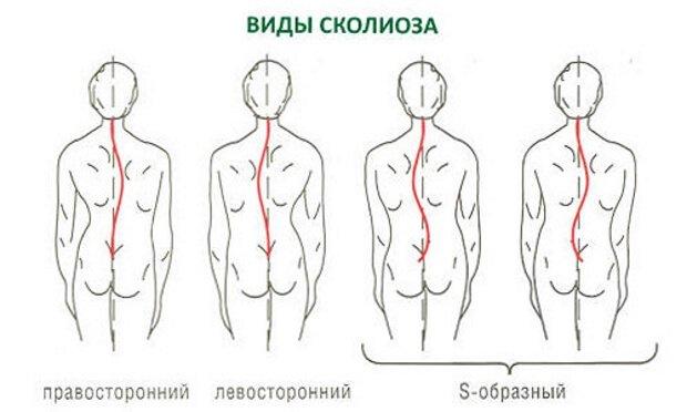 Сколиоз спины лечебная гимнастика