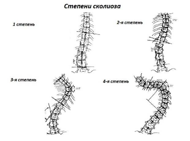 Упражнения от сколиоза 1 степени фото
