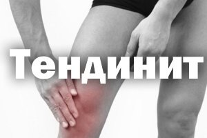 Тендинит - лечение плечевого, коленного сустава