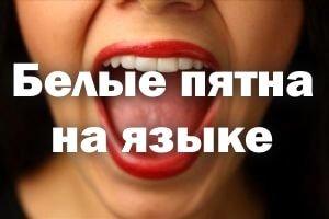 Белые пятна на языке