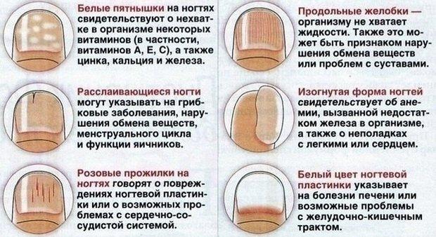 Изменения ногтевых пластин