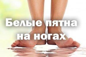 Белые пятна на ногах