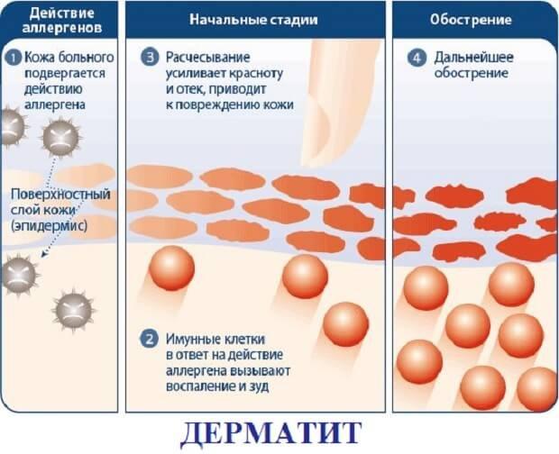 дерматит
