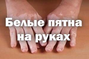белые пятна на руках