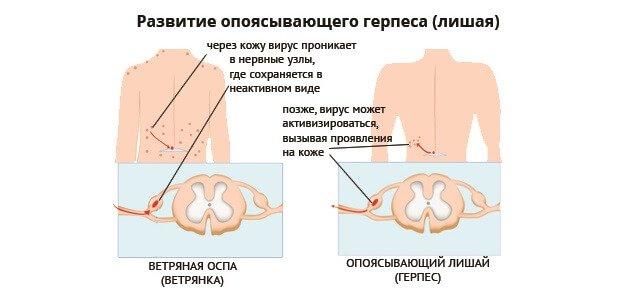 лекарство от паразитов интоксис кто производитель
