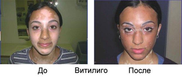 Витилиго до и после
