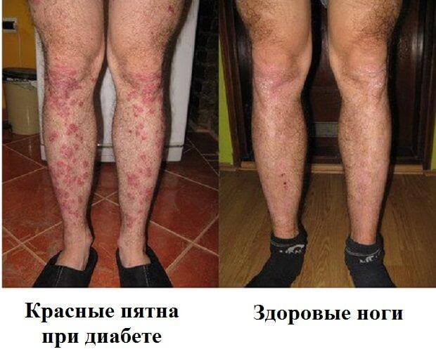 Болячки на ноге как лечить