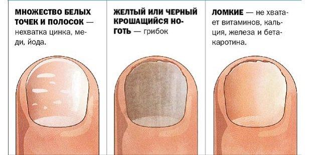 дизайн черных ногтей с золотом фото