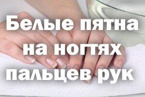 Почему появляются белые пятна на ногтях пальцев рук