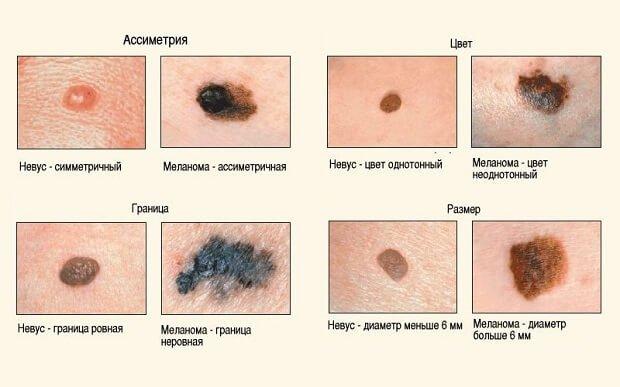 Отличия невуса от меланомы