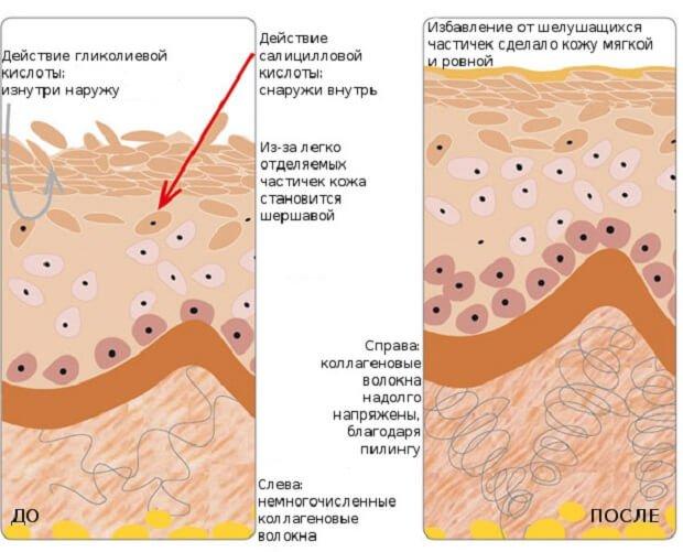 Действие салициловой кислоты