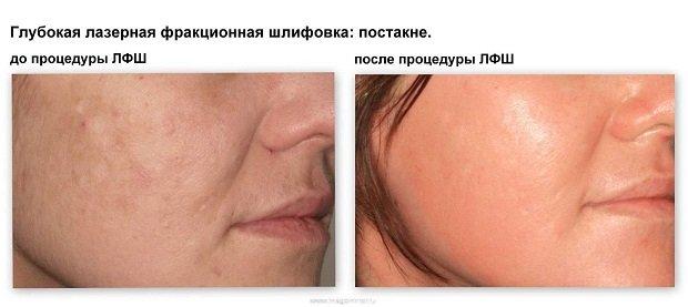 До и после лазерной шлифовки