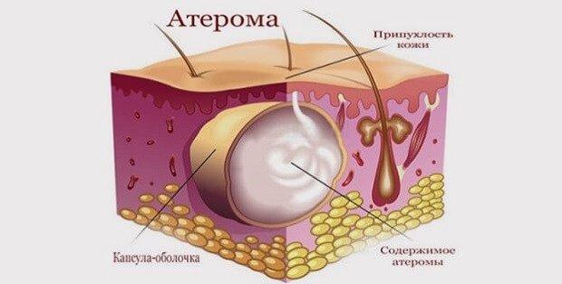 Атерома на коже