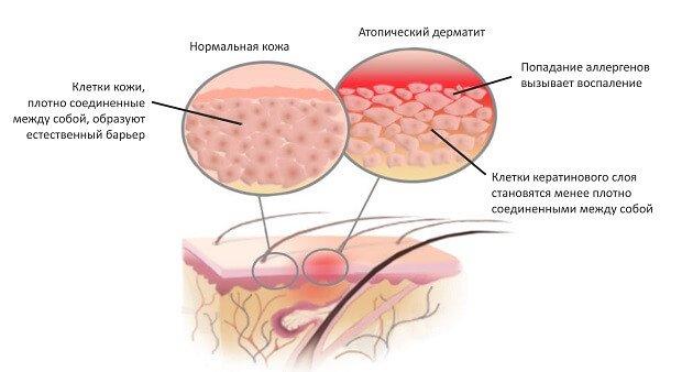 Атопический дерматит на коже