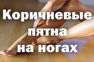 Коричневые пятна на ногах