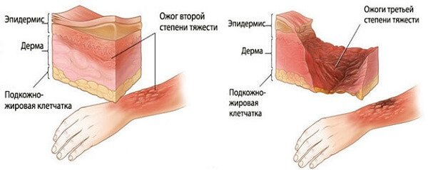 Ожоги кожи
