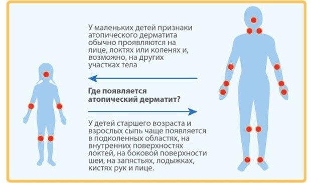Появление дерматита