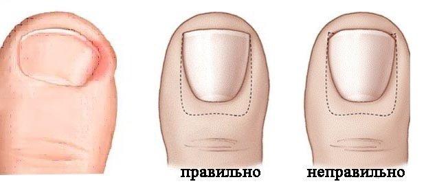 Правильная форма ногтя