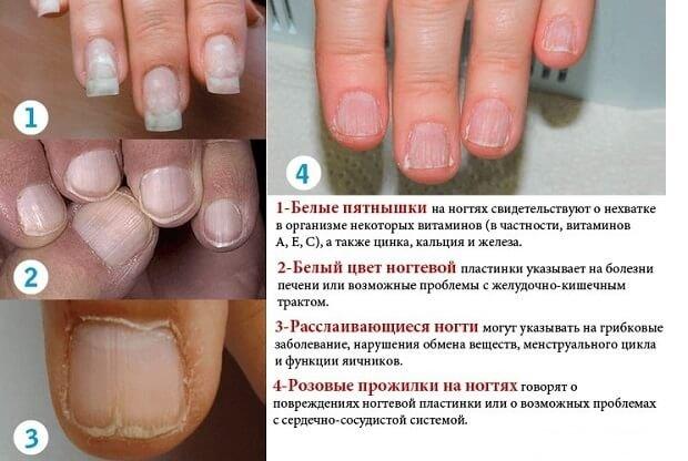 Причины расслаивания ногтя