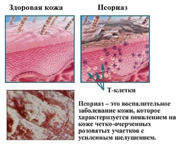 Псориаз на коже