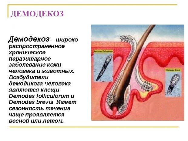 Развитие демодекоза