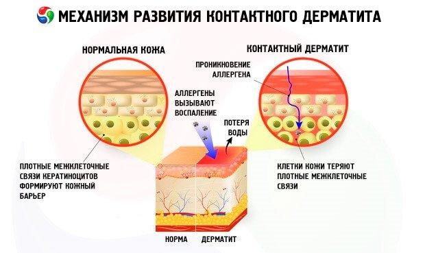 Развитие дерматита
