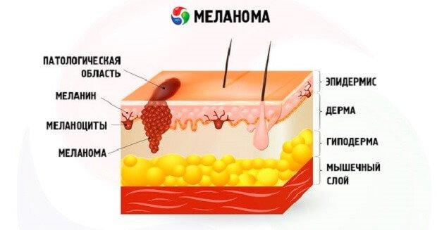 Меланома на коже