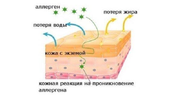 Реакция на проникновение аллергена