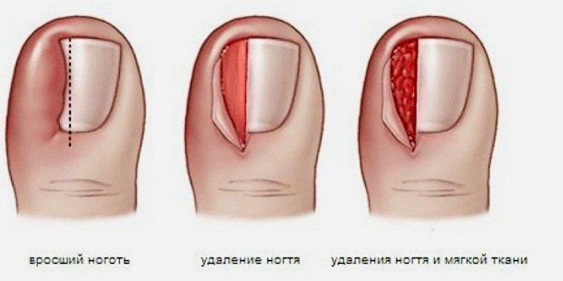 Резекция ногтевой пластины